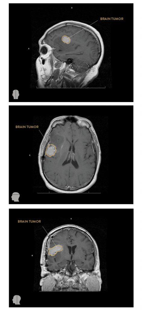brain-tumor-mri