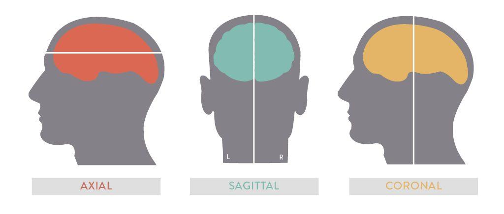 MRI Views