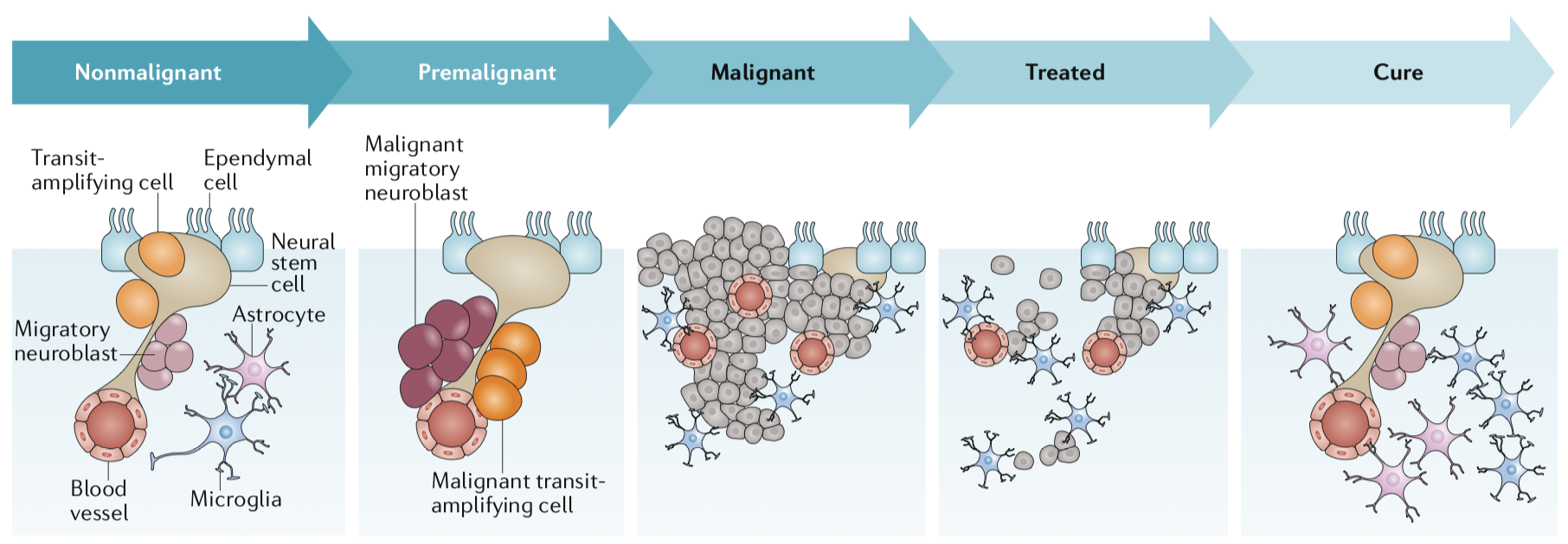hypothetical progression of a brain tumor through development, treatment, and cure